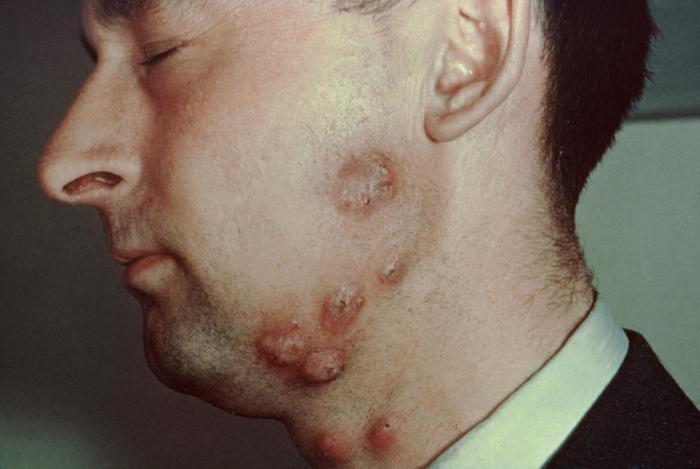 osteomyelitis knie